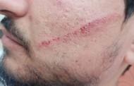 عودة إلى مربع العنف في الفضاء الجامعي: تعرض كاتب عام الاتحاد العام التونسي للطلبة